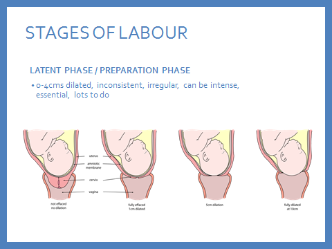 Stages of labour1.png